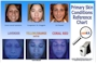 Skin Condition Reference Chart English